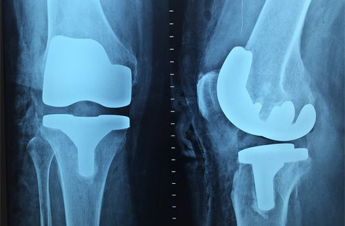 Dr. R Bhaga Orthopaedic Specialist