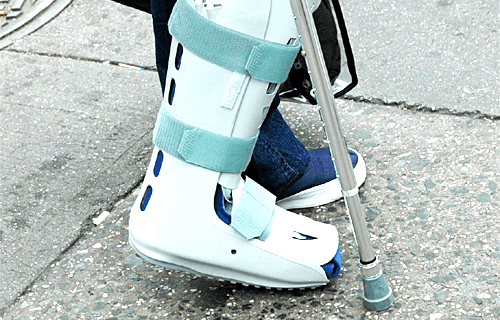 Joos Huyzers - Orthopaedic Services